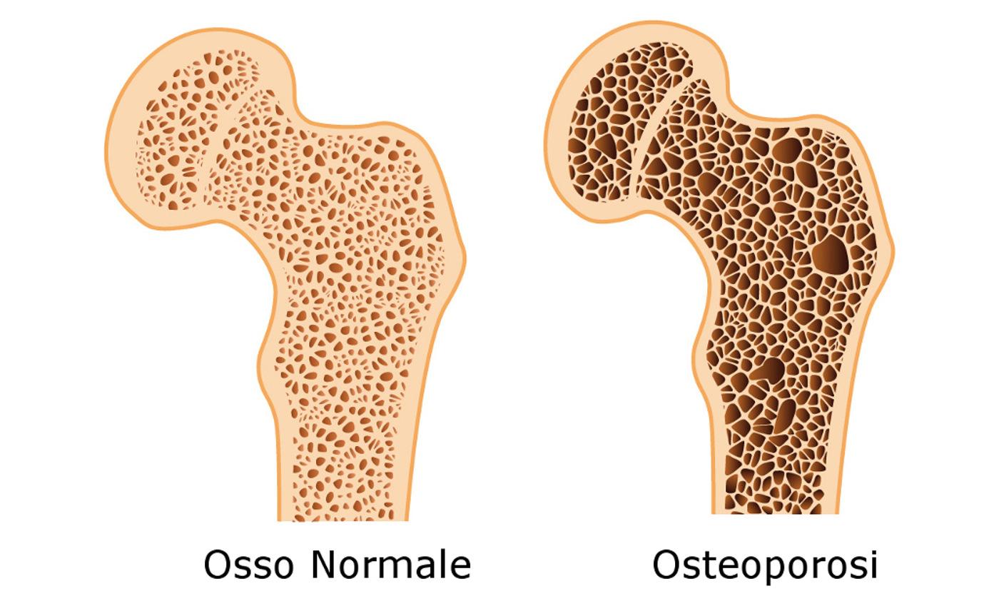 osteoporosi-cause